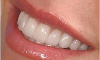 بهداشت دهان و دندان-دندانپزشکی-کنگره دندانپزشکی
